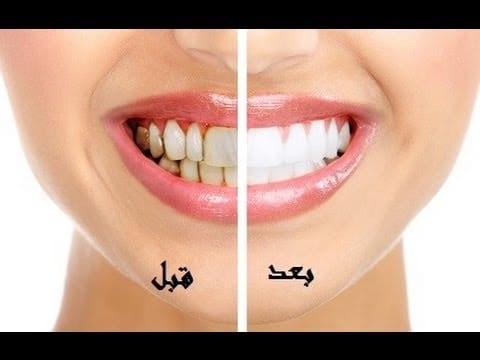 يوتيوب علاج رائحة الفم وعلاج تبييض الأسنان 2019