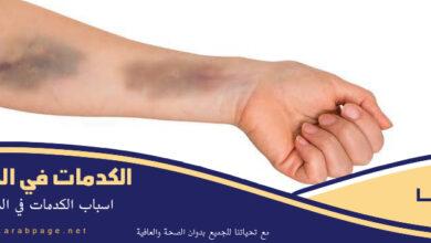 صورة سبب ظهور الكدمات في الجسم بقع سوداء علاجها