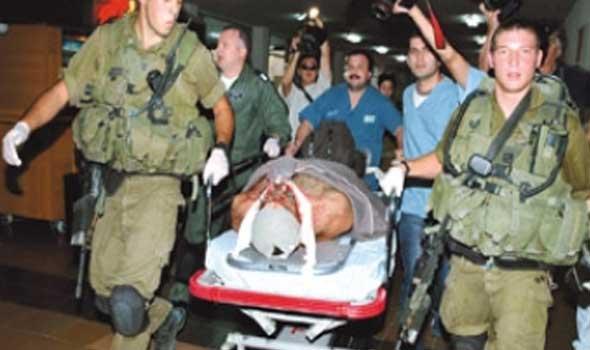 صورة اسرائيل اليوم : اصابة صهيوني بحروق وجراح بالغة الخطورة
