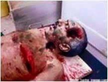 صورة مقتل علي عبدالله صالح اليوم 4 ديسمبر 2017