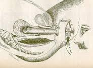 ترقيع غشاء البكارة صورة ومعلومات طبيه وانواع غشاء البكارة Hymenorrhaphy