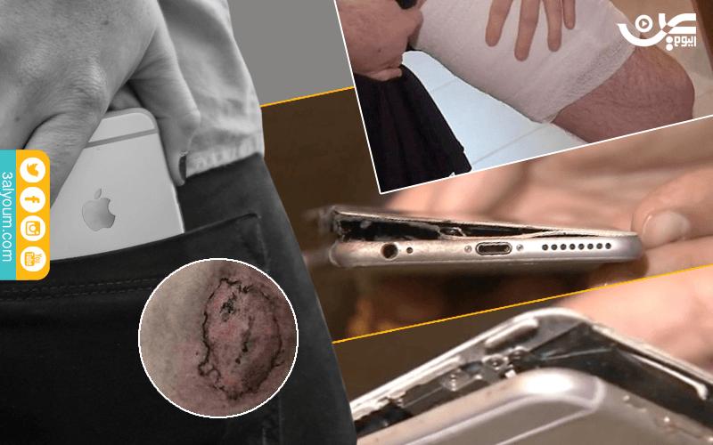 Photo of صور ايفون ينفجر في جيب احد الأشخاص وسبب انفجار هاتف ايفون 7