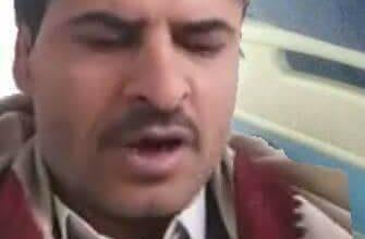 صورة حقيقة ضرب حسين الأملحي في صنعاء