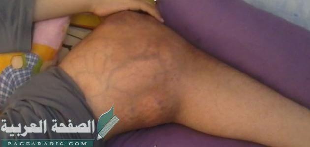 Photo of أسباب سرطان العظام وطرق علاجه