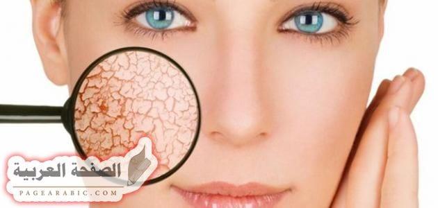 Photo of علاج جفاف البشرة