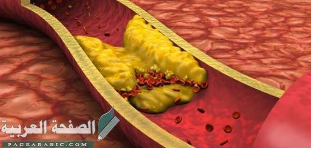 صورة علاج ارتفاع الكولسترول وأسبابه