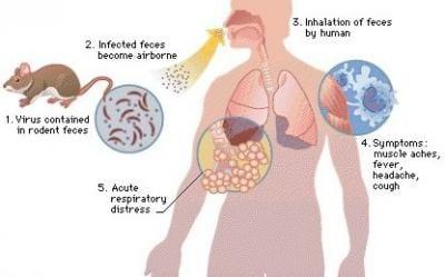 اعراض فيروس هانتا Hantaviridae والفرق بينه وبين فيروس كورونا