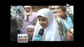 Photo of الطفلة اليمنية كسى البنت التي تعالج في منطقه النشمه في تعز